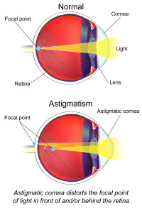 Astigmatism, the Eye, and Diving